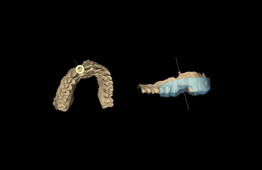 Využitie 3D tlače v stomatológii